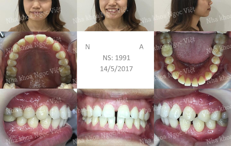 niềng răng thưa tại trung tâm niềng răng BS Việt Anh 3