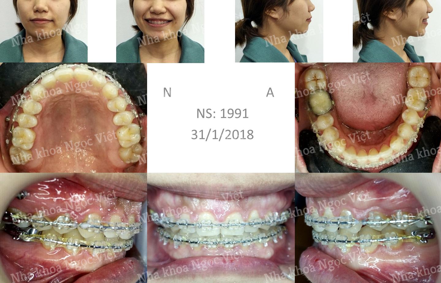 niềng răng thưa tại nha khoa ngọc việt 1