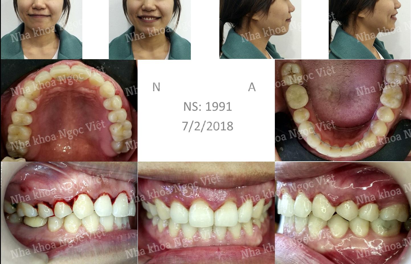 niềng răng thưa tại trung tâm niềng răng BS Việt Anh