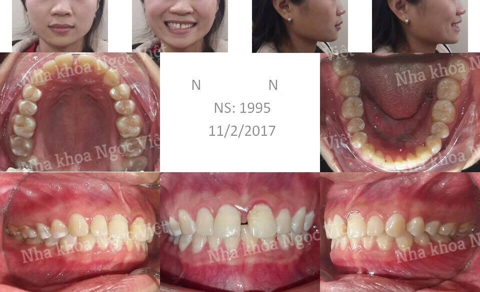 Niềng răng thưa hà nội 2018