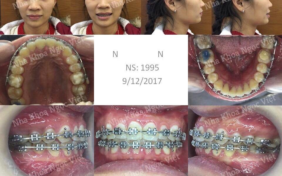 Niềng răng thưa hà nội 2018 1