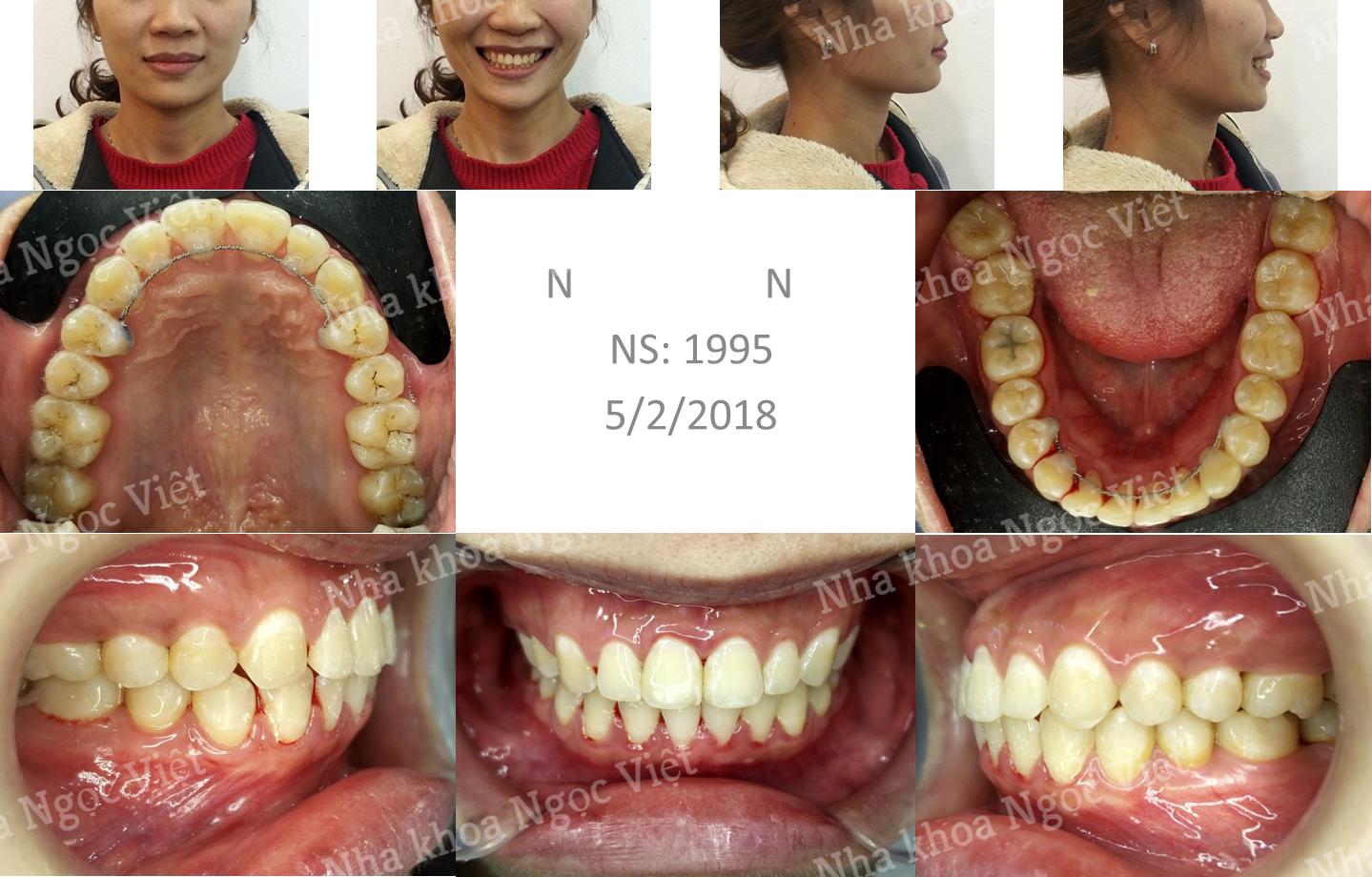 Niềng răng thưa hà nội 2018 4