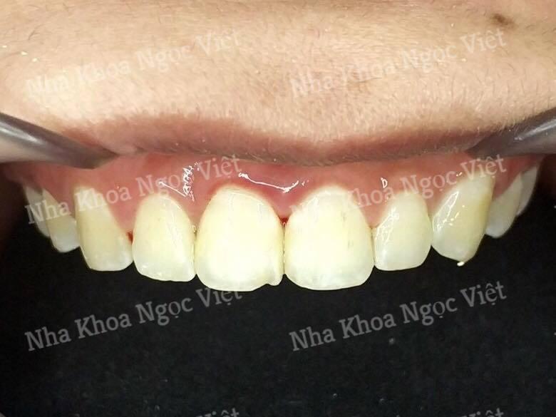 niềng răng tại nha khoa hà nội