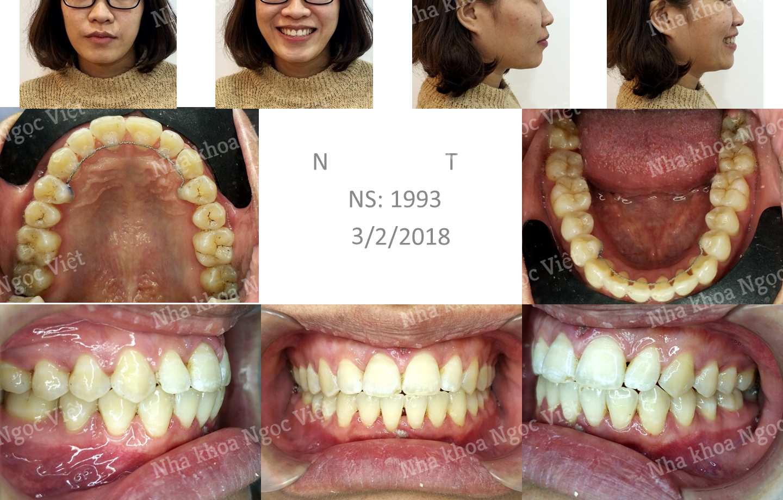 niềng răng thưa tại hà nội 2