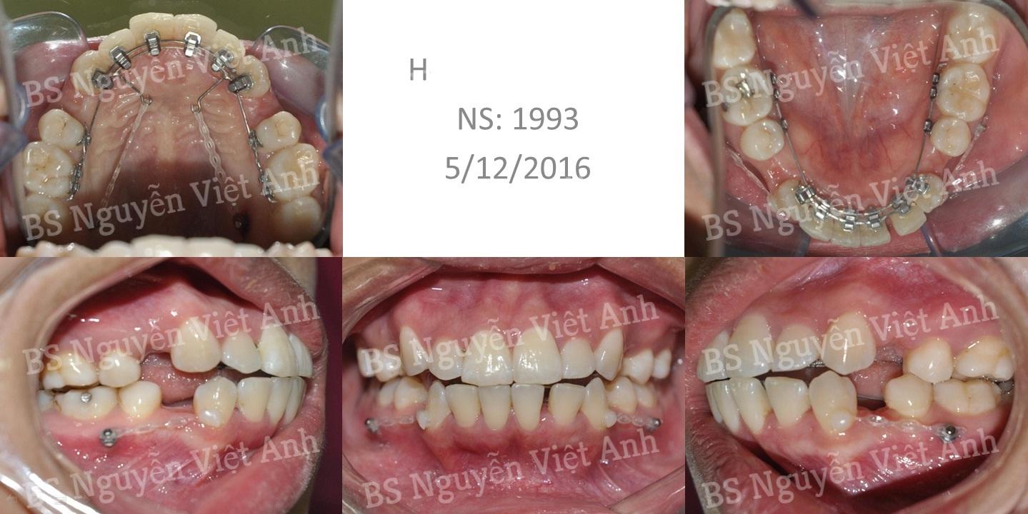 niềng răng mặt trong tại hà nội 1