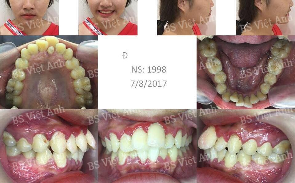 niềng răng bị hô tại hà nội 1