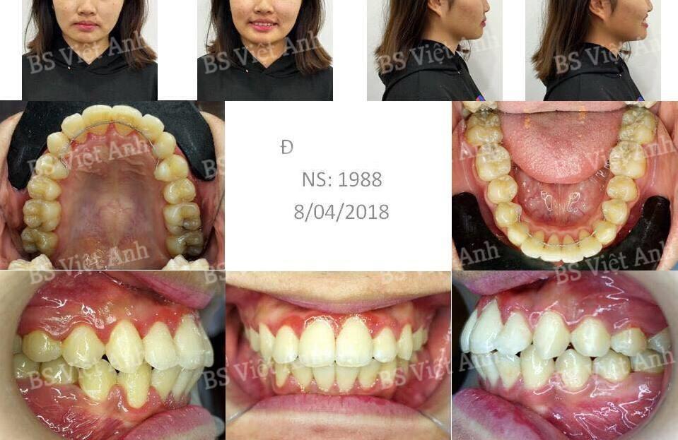 niềng răng bị hô tại hà nội