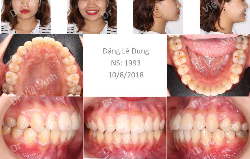 Bệnh nhân niềng răng mặt trong sau 13 tháng