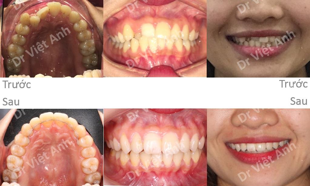 Sự thay đổi trước và sau khi niềng răng mặt trong