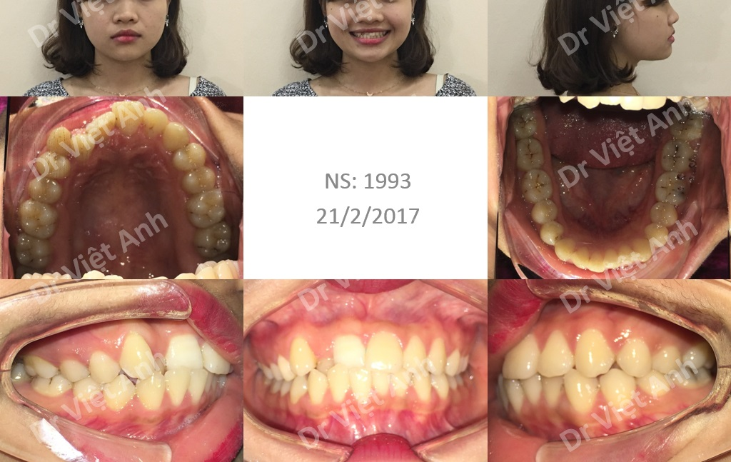 niềng răng mặt trong cho bệnh nhân