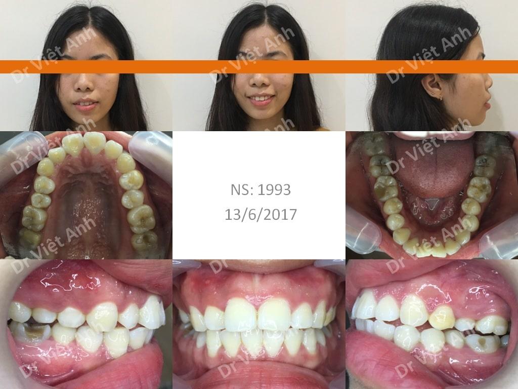 niềng răng sinh viên 4