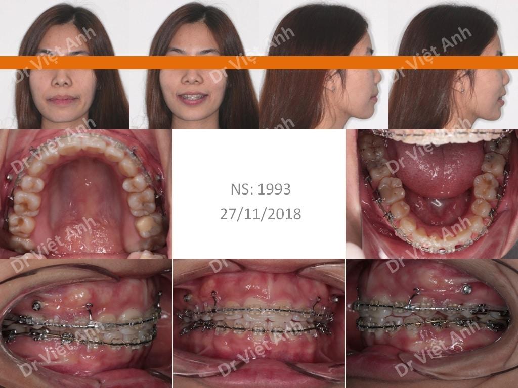 niềng răng sinh viên 2