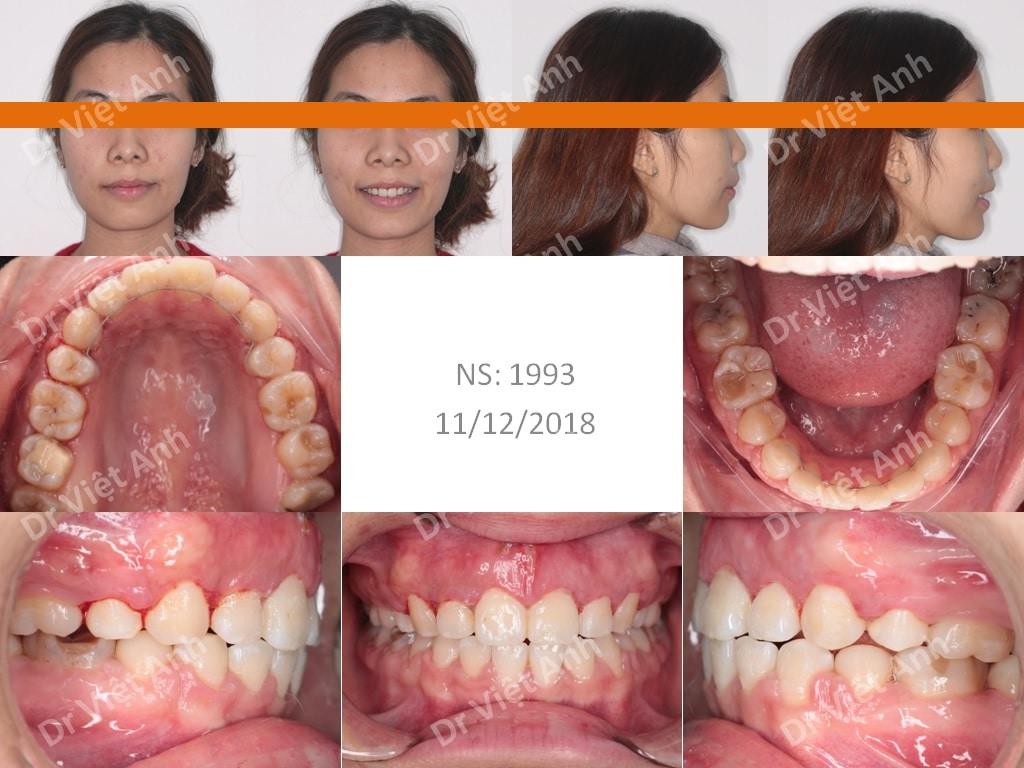 niềng răng sinh viên 1