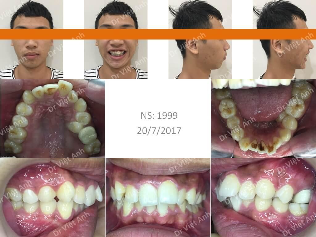 niềng răng bằng mắc cài composite