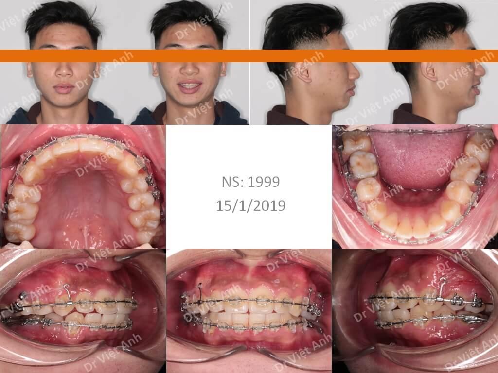 Niềng răng bằng mắc cài composite  2