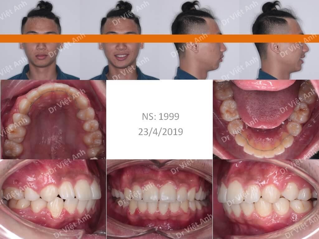 Niềng răng bằng mắc cài composite 3