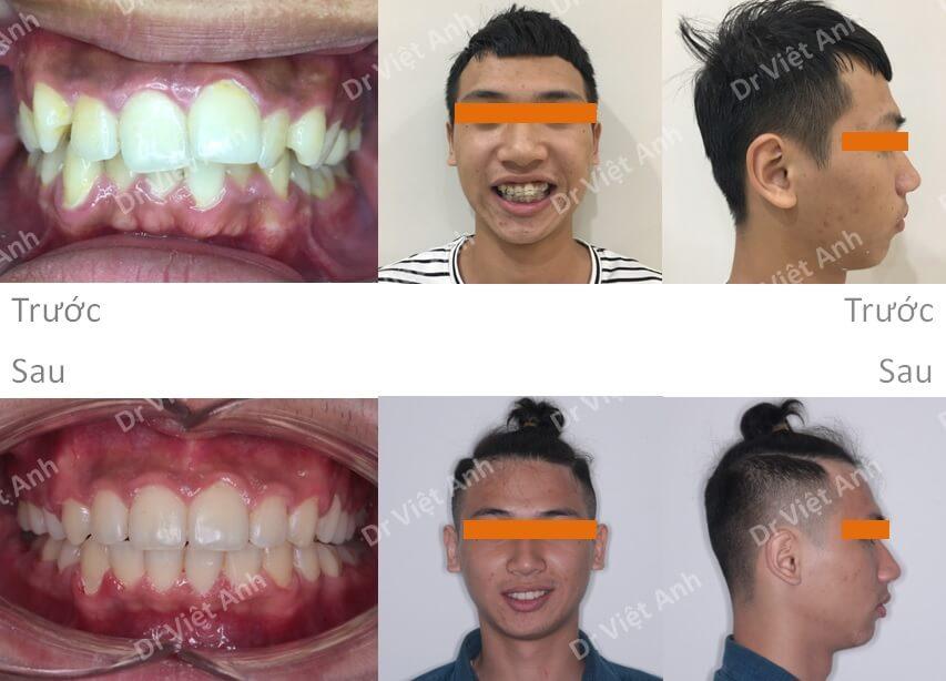 Niềng răng bằng mắc cài composite  5