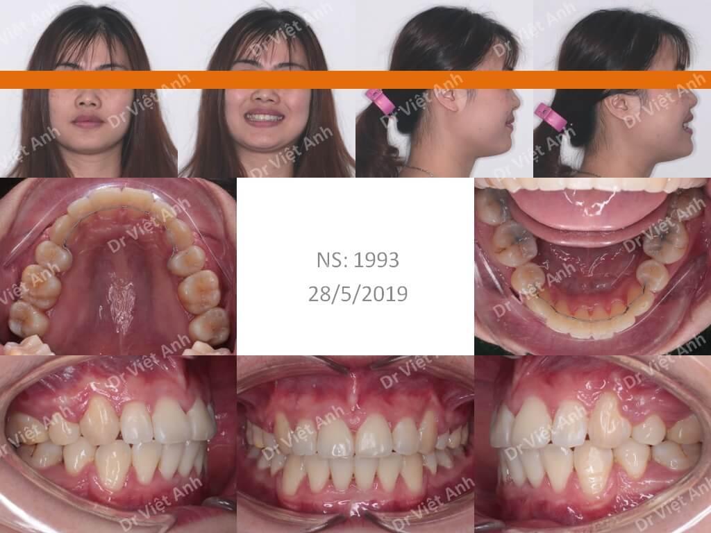 Niềng răng hô đẹp - Niềng răng sinh viên 4