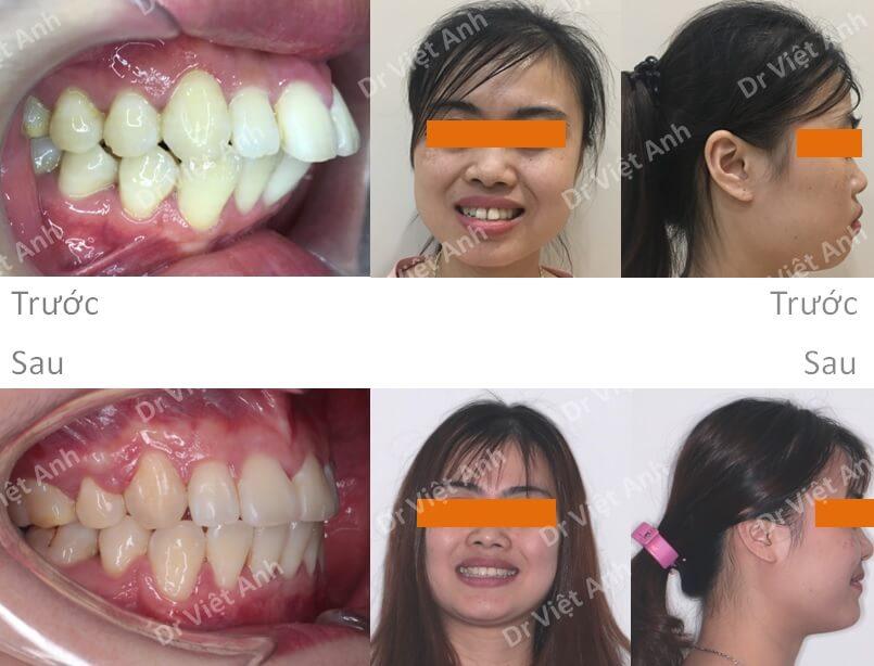Niềng răng hô đẹp - Niềng răng sinh viên 6