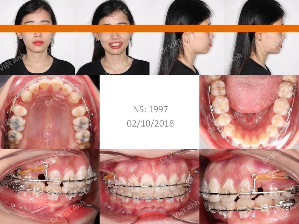 Niềng răng bằng mắc cài pha lê 2