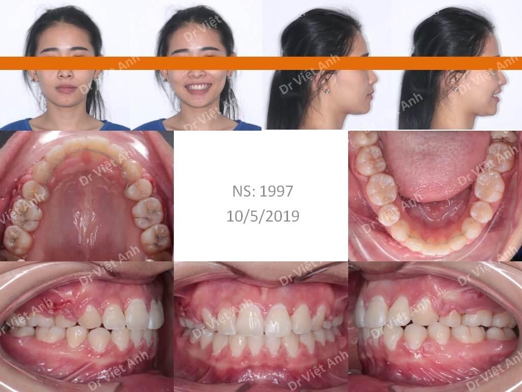 Niềng răng bằng mắc cài pha lê 3