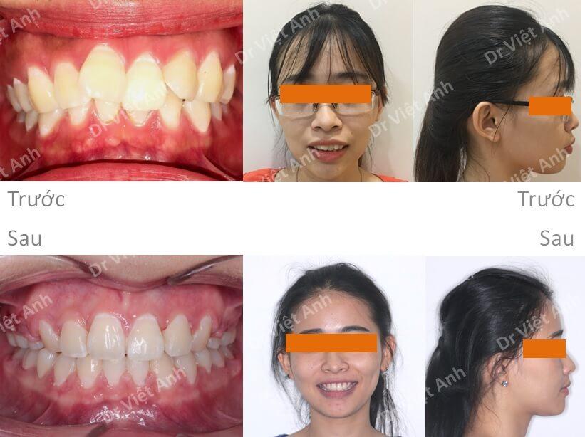 Niềng răng bằng mắc cài pha lê 5