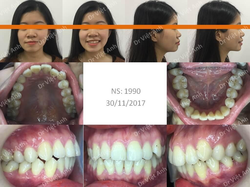 Niềng răng một ca hô răng và hô hàm