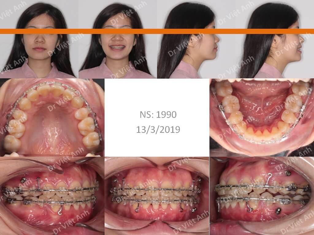 Niềng răng một ca hô răng và hô hàm 1