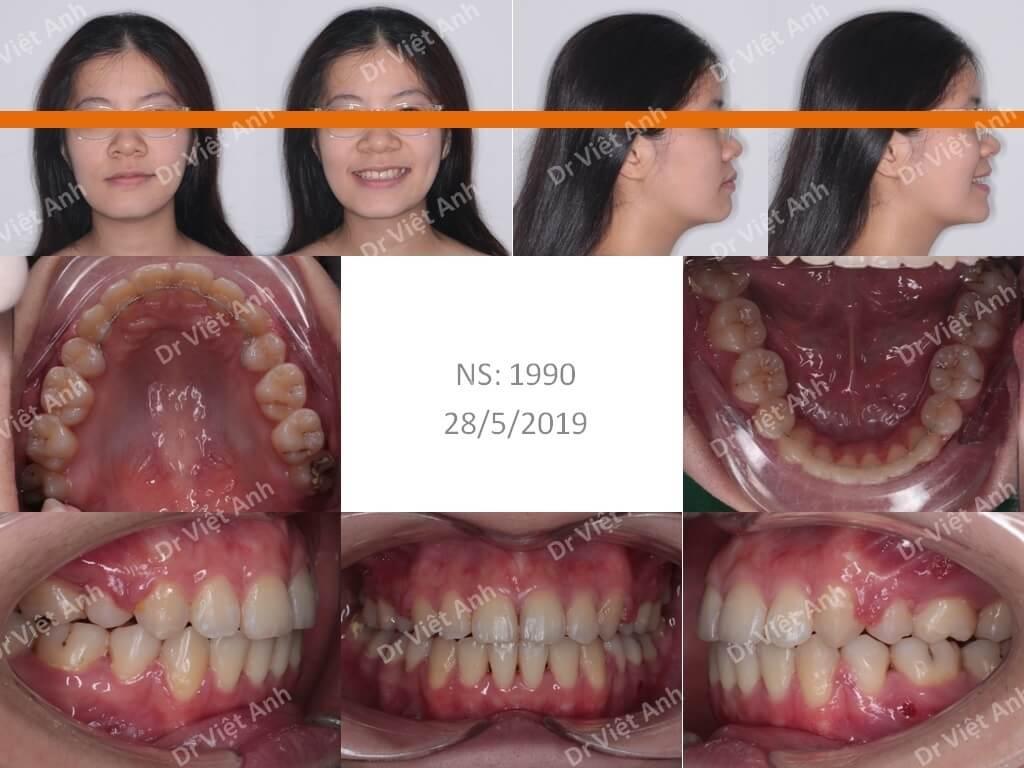 Niềng răng một ca hô răng và hô hàm 2