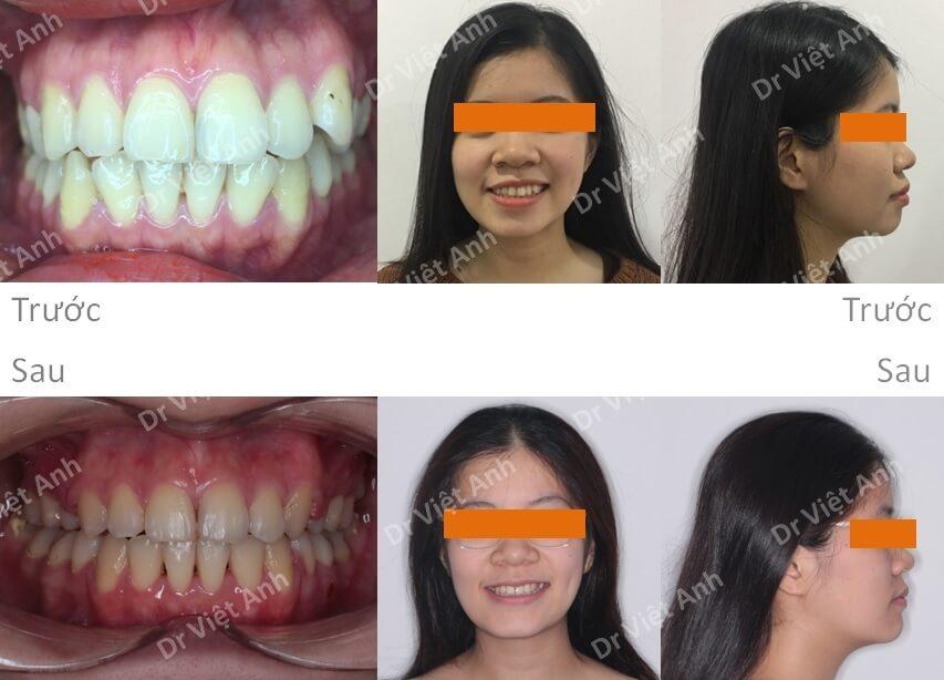 Niềng răng một ca hô răng và hô hàm 3