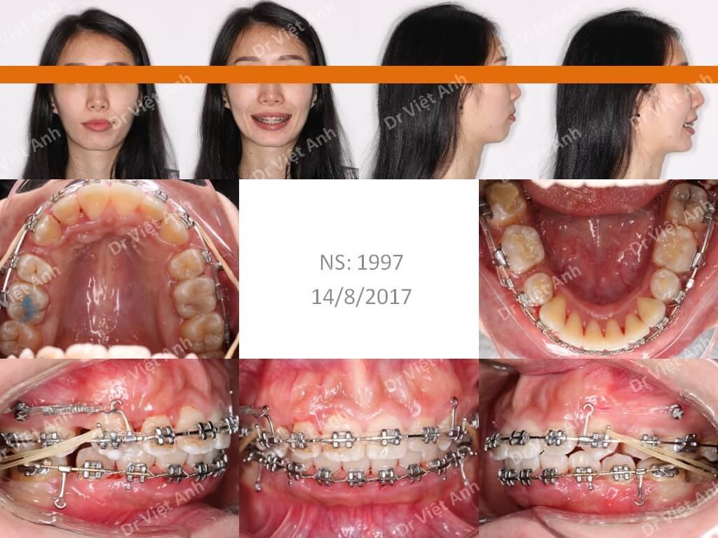 Niềng răng một ca hô xương 1