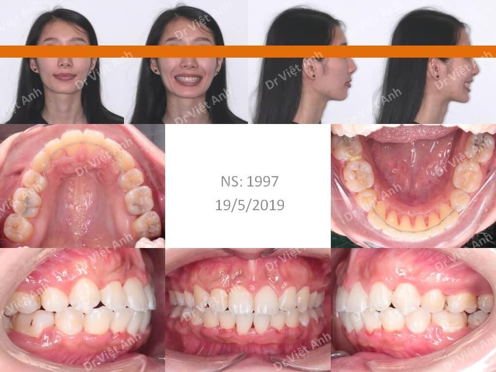 Niềng răng một ca hô xương 3