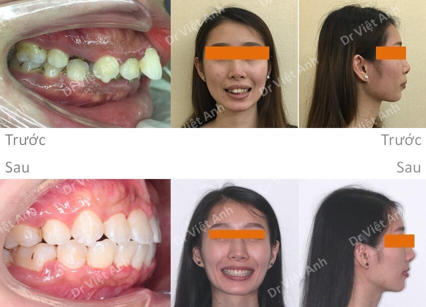 Niềng răng một ca hô xương 5