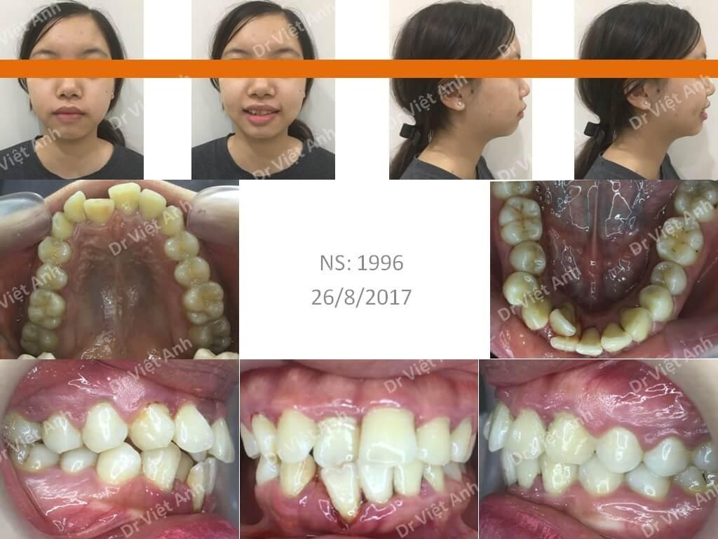 Niềng răng khấp khểnh nặng 1
