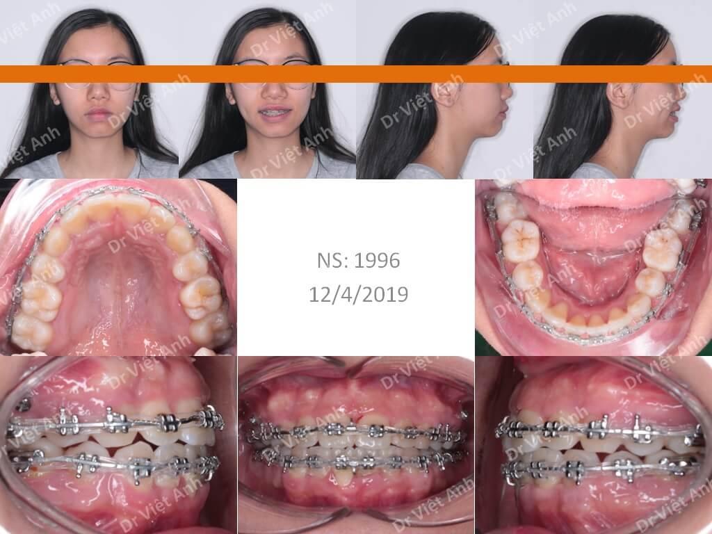 Niềng răng khấp khểnh nặng 2