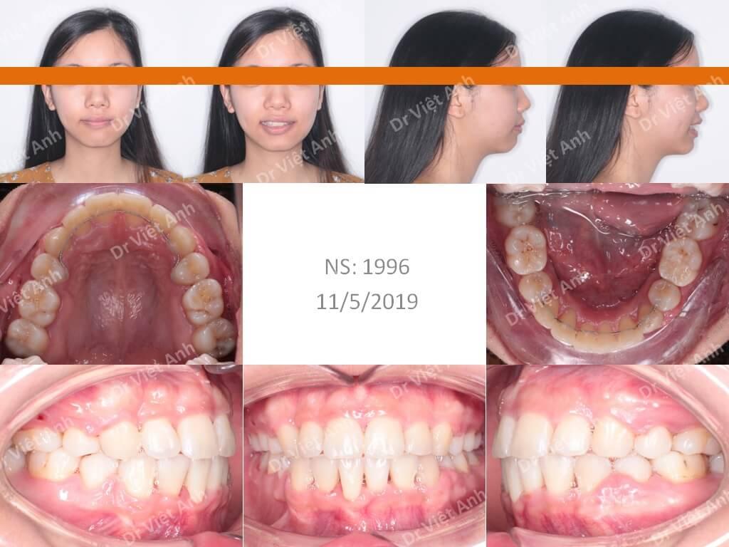 Niềng răng khấp khểnh nặng 3
