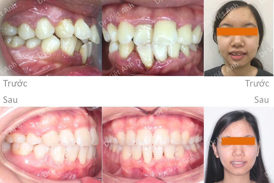 Niềng răng khấp khểnh nặng 5