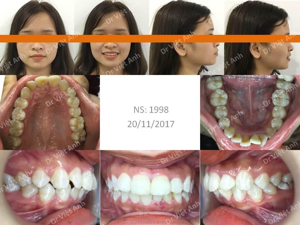 Niềng răng hô giúp mũi cao hơn và cằm dài hơn