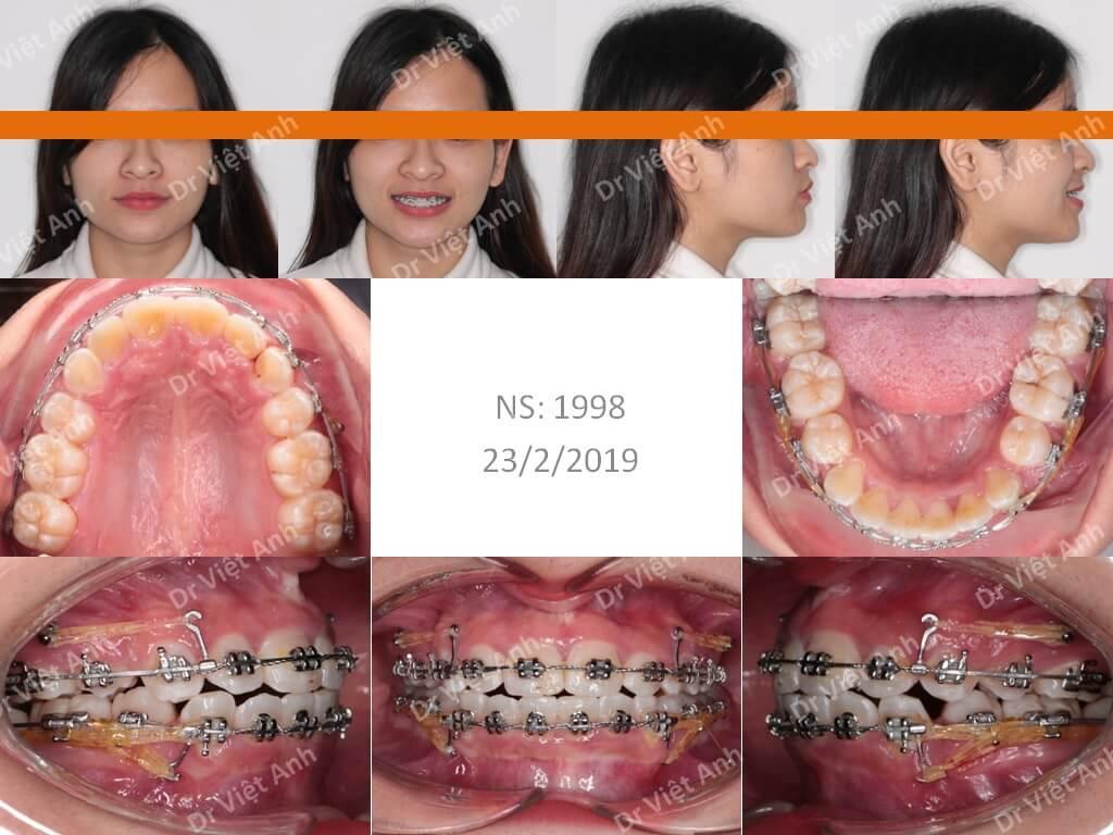 Niềng răng hô giúp mũi cao hơn và cằm dài hơn 1