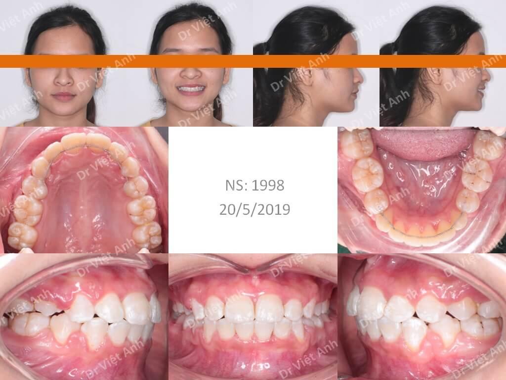 Niềng răng hô giúp mũi cao hơn và cằm dài hơn 3