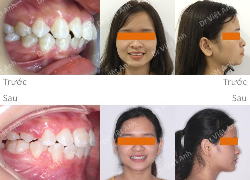 Niềng răng hô giúp mũi cao hơn và cằm dài hơn 5