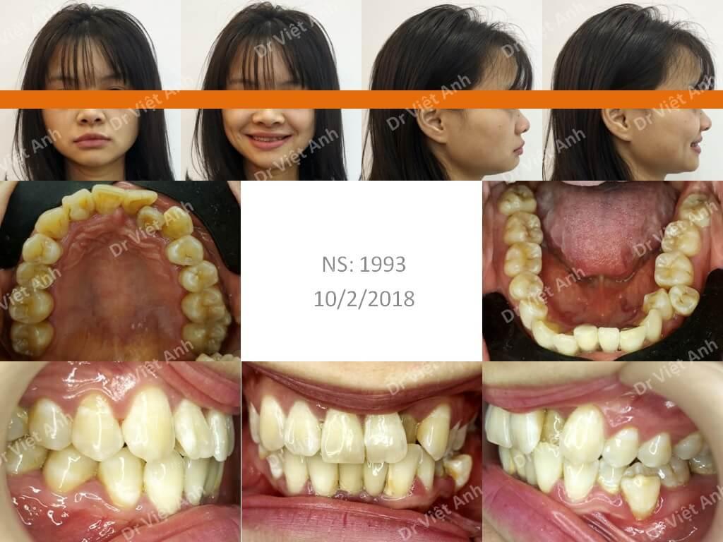 Niềng răng móm, mặt ngắn thành công sau 15 tháng