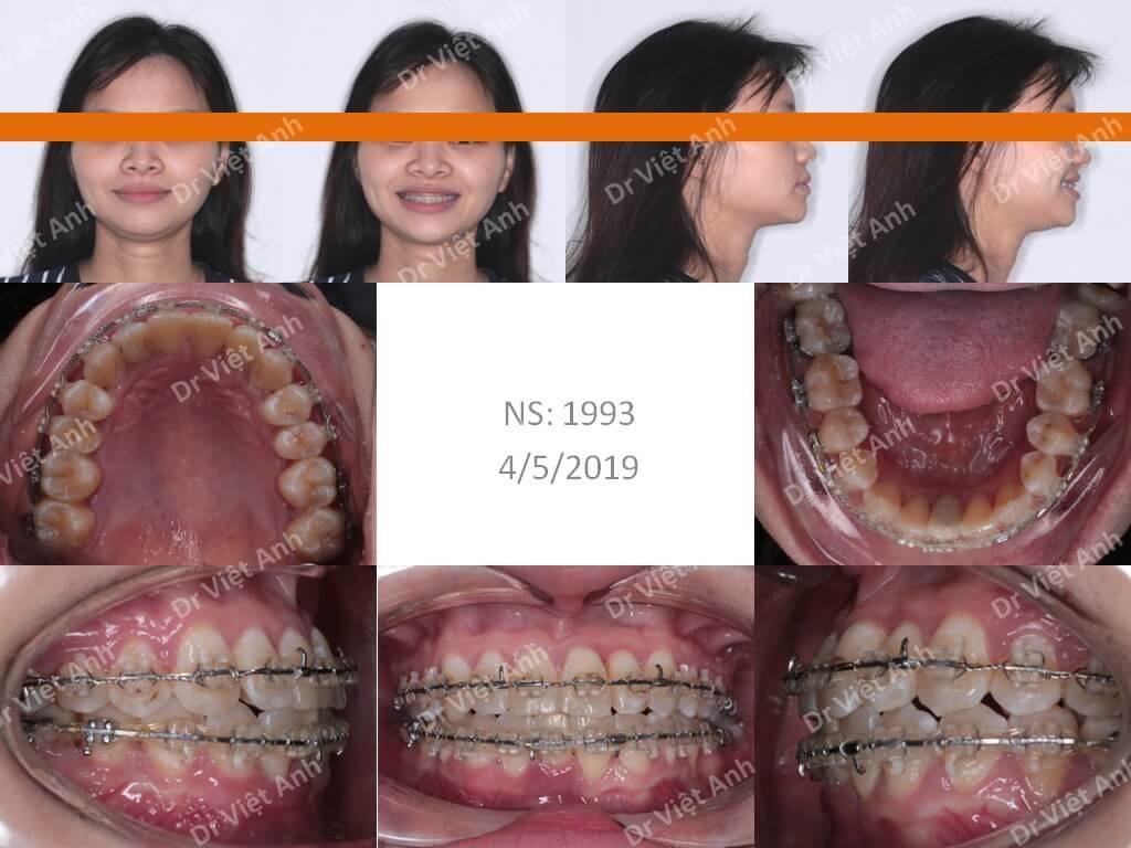 Niềng răng móm, mặt ngắn thành công sau 15 tháng 1