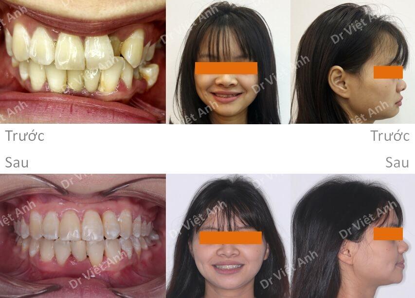 Niềng răng móm, mặt ngắn thành công sau 15 tháng 2