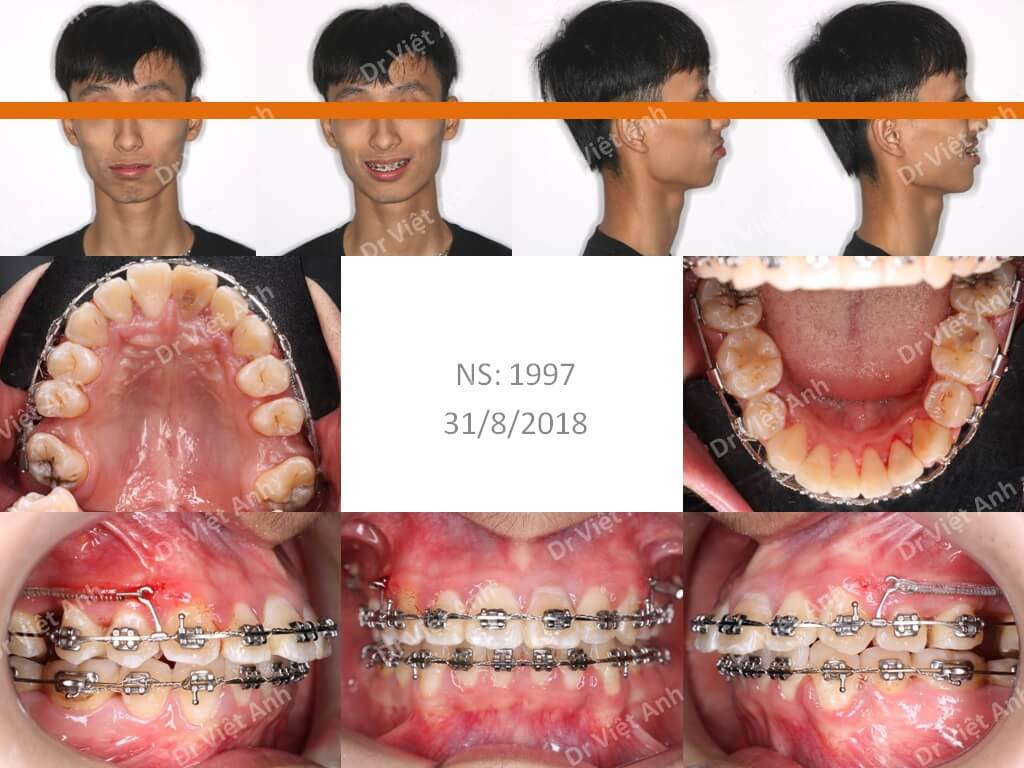 Niềng răng hô, khấp khểnh 1