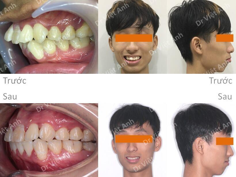 Niềng răng hô, khấp khểnh 3