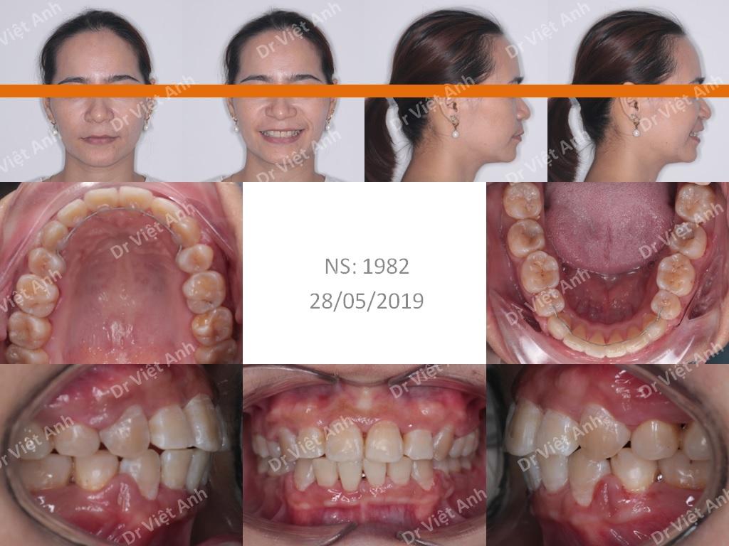 Niềng răng khểnh, hô cho khách hàng nữ 35 tuổi