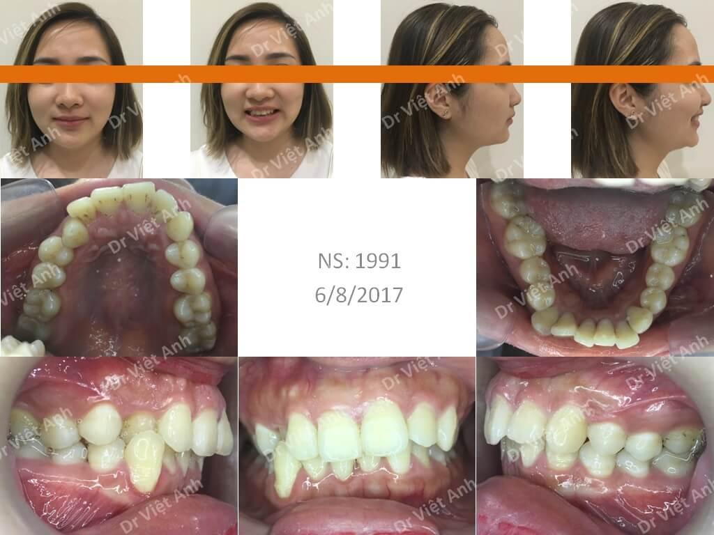 Niềng răng sinh viên hà nội