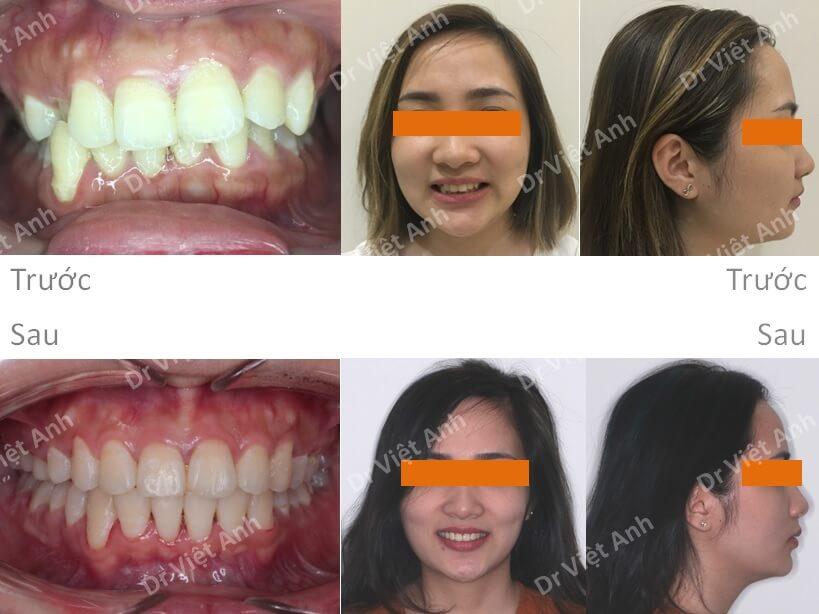 Niềng răng sinh viên Hà Nội 4