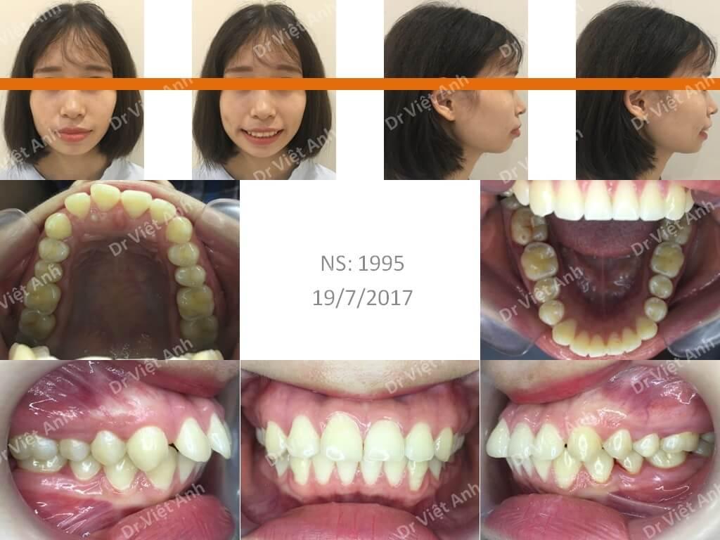Niềng răng sinh viên Hà Nội 3